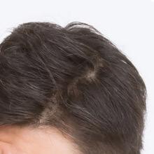 頭髪(男性)