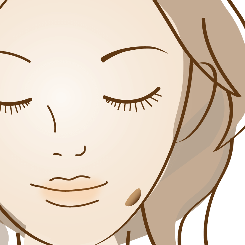 脂漏性角化症(老人性のいぼ)