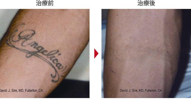 タトゥー除去症例写真