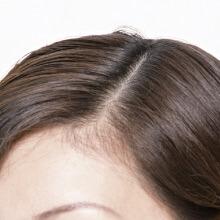 頭髪(女性)