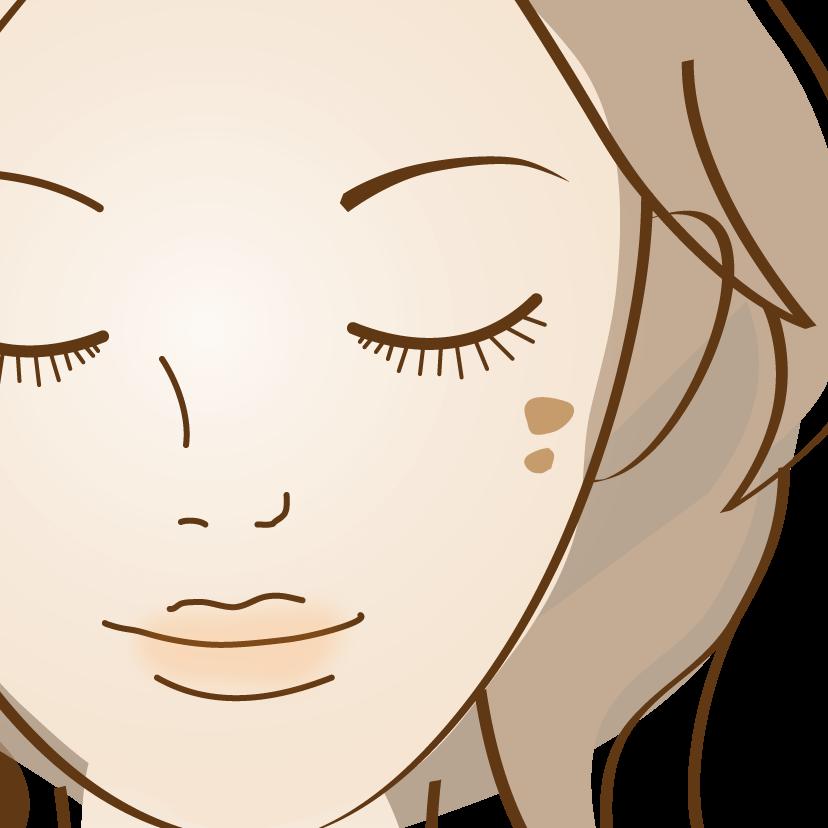 老人性色素斑(日光性色素斑)