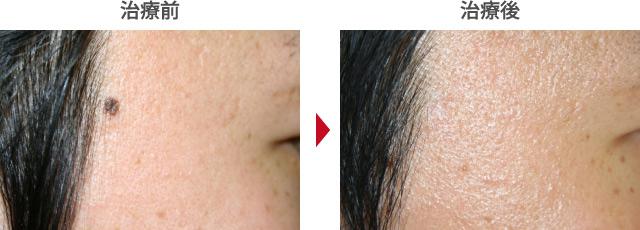 ほくろをレーザー治療で取り除いた症例写真